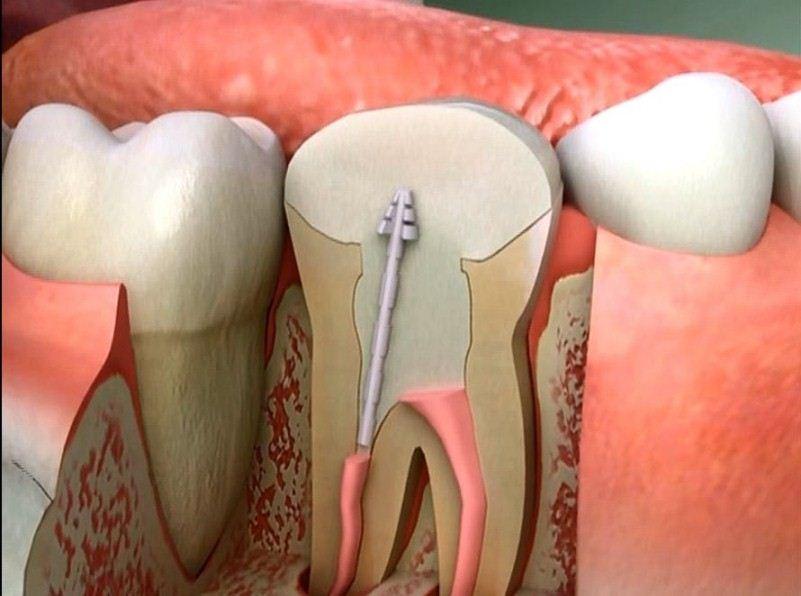 اعصاب الاسنان