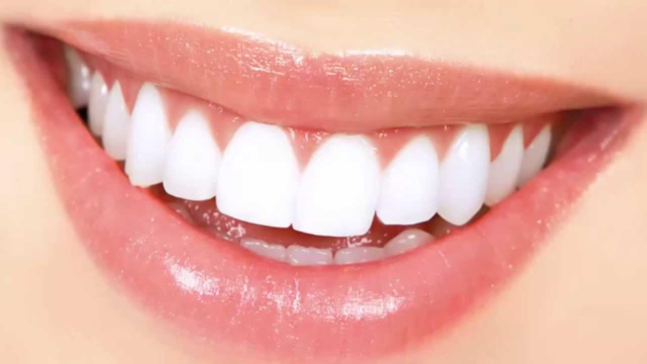 اسنان صحيه