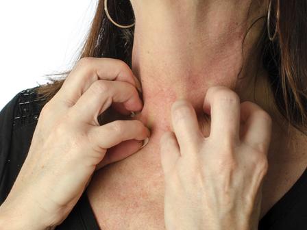 العلاجات المنزلية للطفح الجلدي